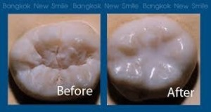 What do dental sealants look like before and after picture