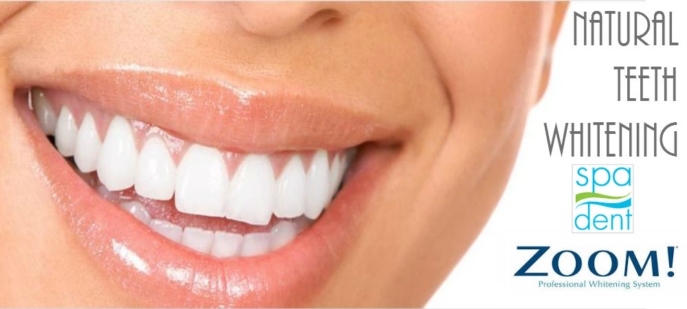All Natural Teeth Whitening